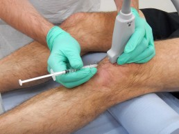 Cortisone Injection knee