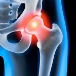 Hip injections. Is there a need for Ultrasound Guidance?