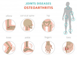Diagrams representing osteoarthritis of various joints